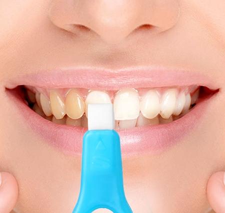 http://www.nyazmarket.com/images/pezeshki.salamat/ovan/ovan-instant-white-teeth-6.jpg