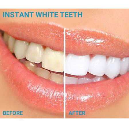 http://www.nyazmarket.com/images/pezeshki.salamat/ovan/ovan-instant-white-teeth-7.jpg